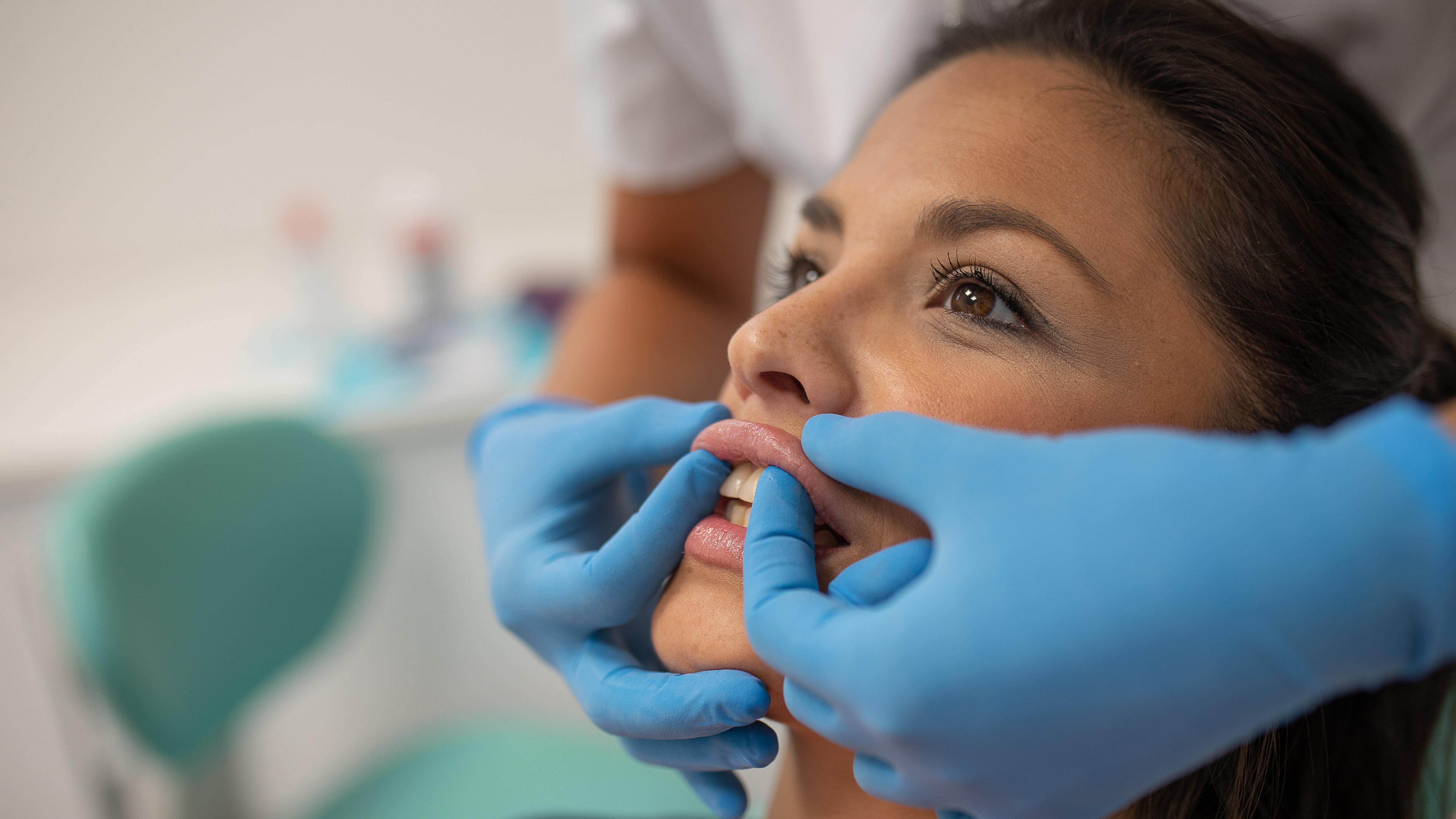 relleno de labios con ácido hialuronico en utrera