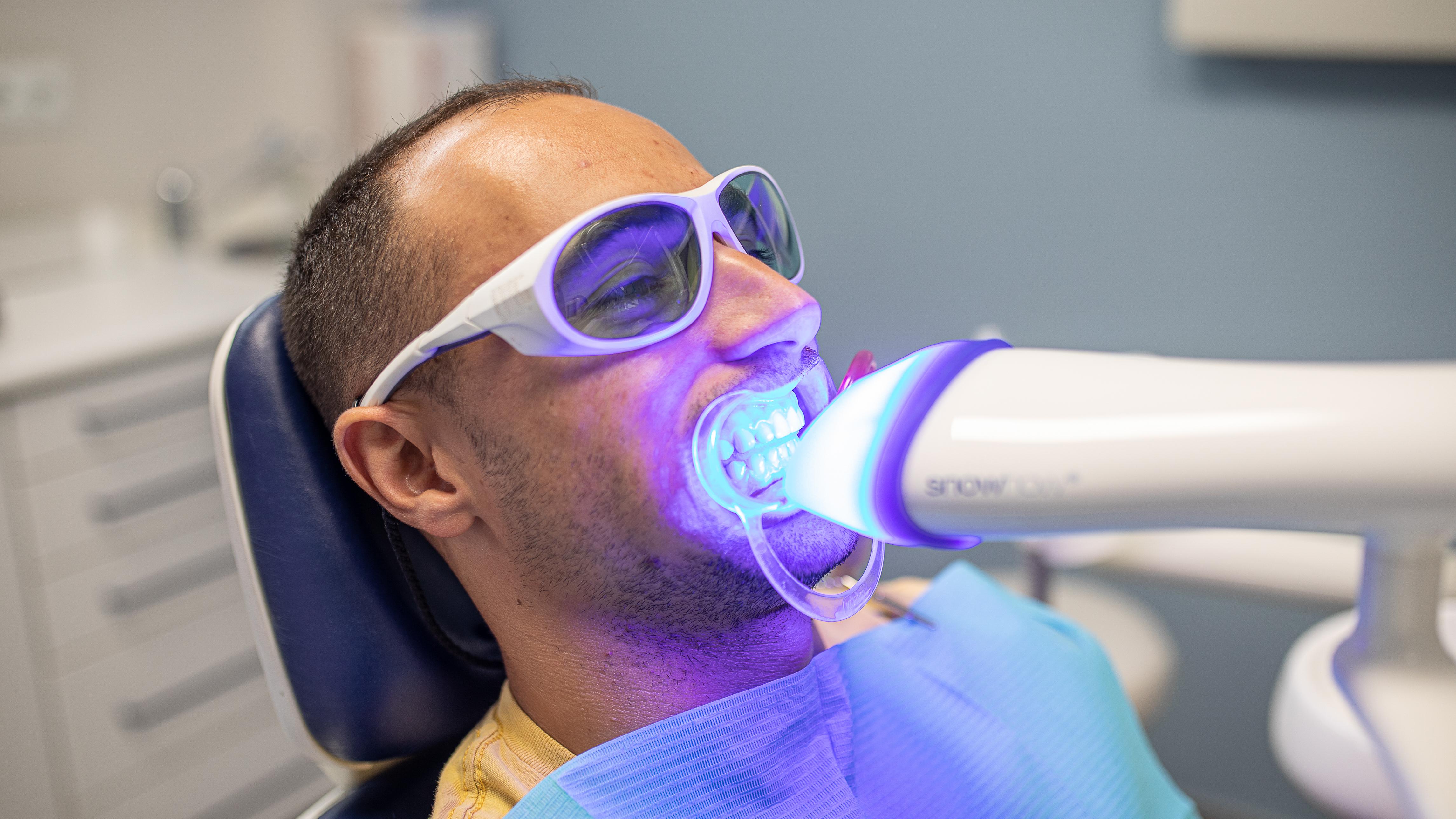 blanqueamiento dental utrera 2