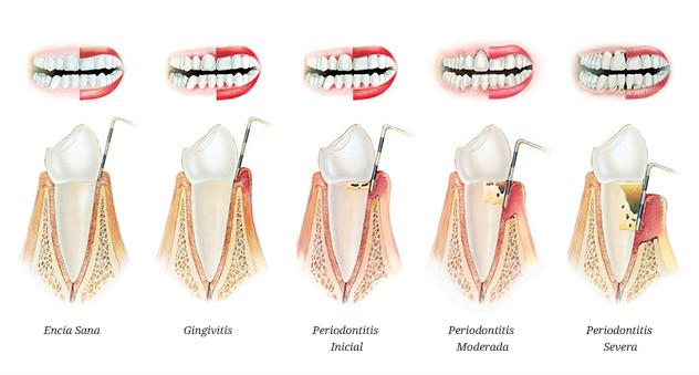 periodoncia utrera