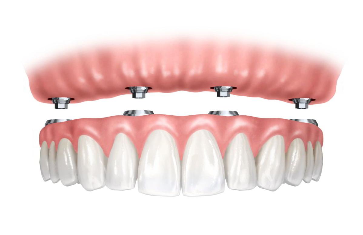 protesis fija sobre implantes clinica dental utrera