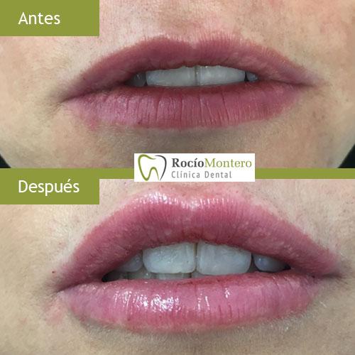 caso-clinico-aumento-labio-clinica-dental-rocio-montero