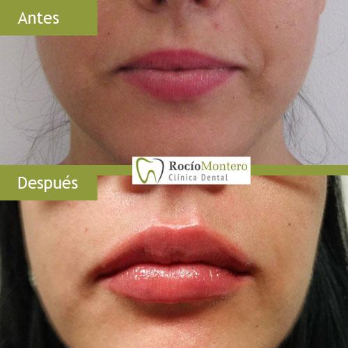 Aumento de Labios con ácido hialurónico | Clínica Dental Rocío Montero