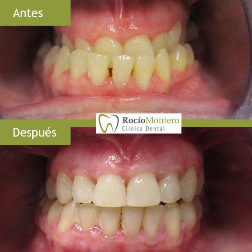 caso-clinico-ortodoncia-por-maloclusion