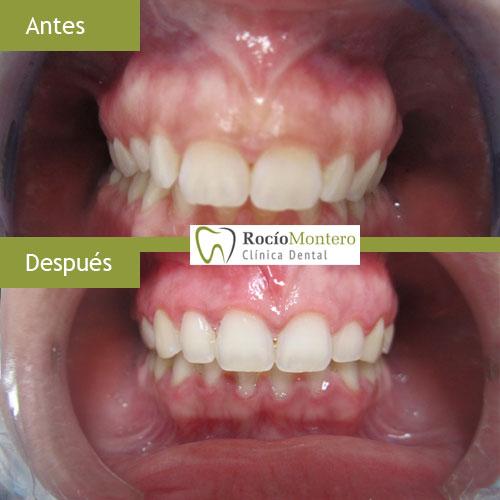 caso-clinica dental utrera