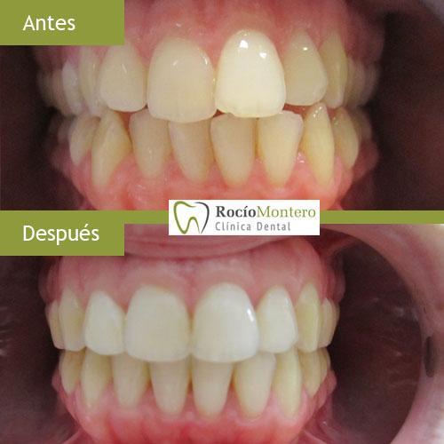 ortodoncia-clinica-dental-rocio-montero