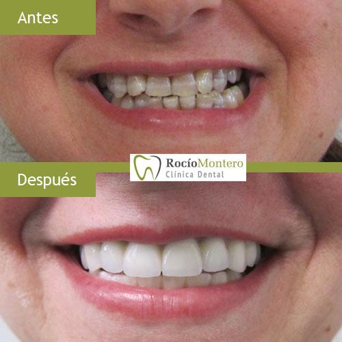 tratamiento dientes manchados