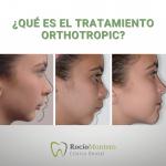 tratamiento orthotropic